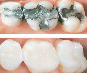 white-fillings