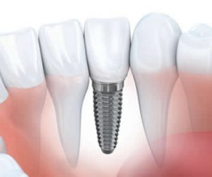 Dental Implants Morehead City NC