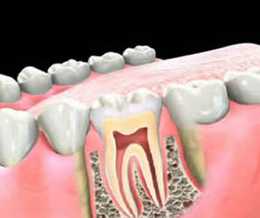 Root Canal Treatment Morehead City NC