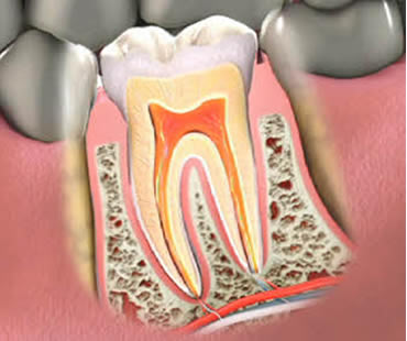 Root canal treatment in Morehead City NC