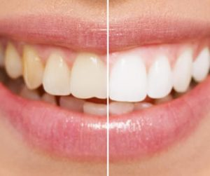 Teeth Whitening Morehead City NC