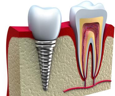 dental implants dentist in Morehead City