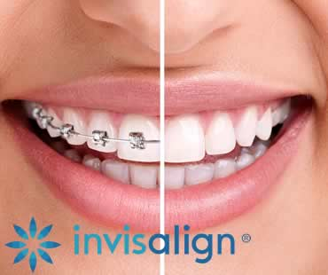 Achieving Your Best Smile with Invisalign