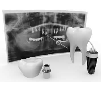 Preserving Bone With Dental Implants