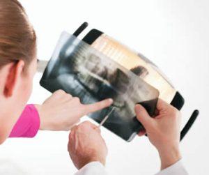 wisdom-teeth-dentist-1