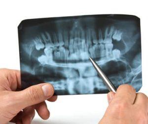 wisdom-teeth-dentist-4