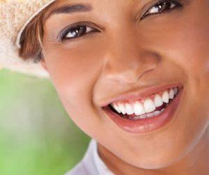 teeth-whitening-5
