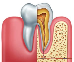 root-canal-treatment-18