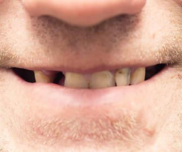 Oral Health Concerns for Middle Aged Folks