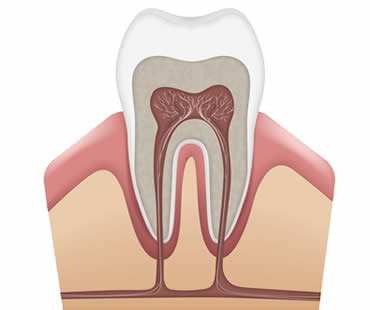 Factors that Affect Your Root Canal Recovery